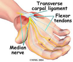 Carpal Tunnel Syndrome Treatment in Baltimore, MD